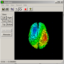 Cortical current density.